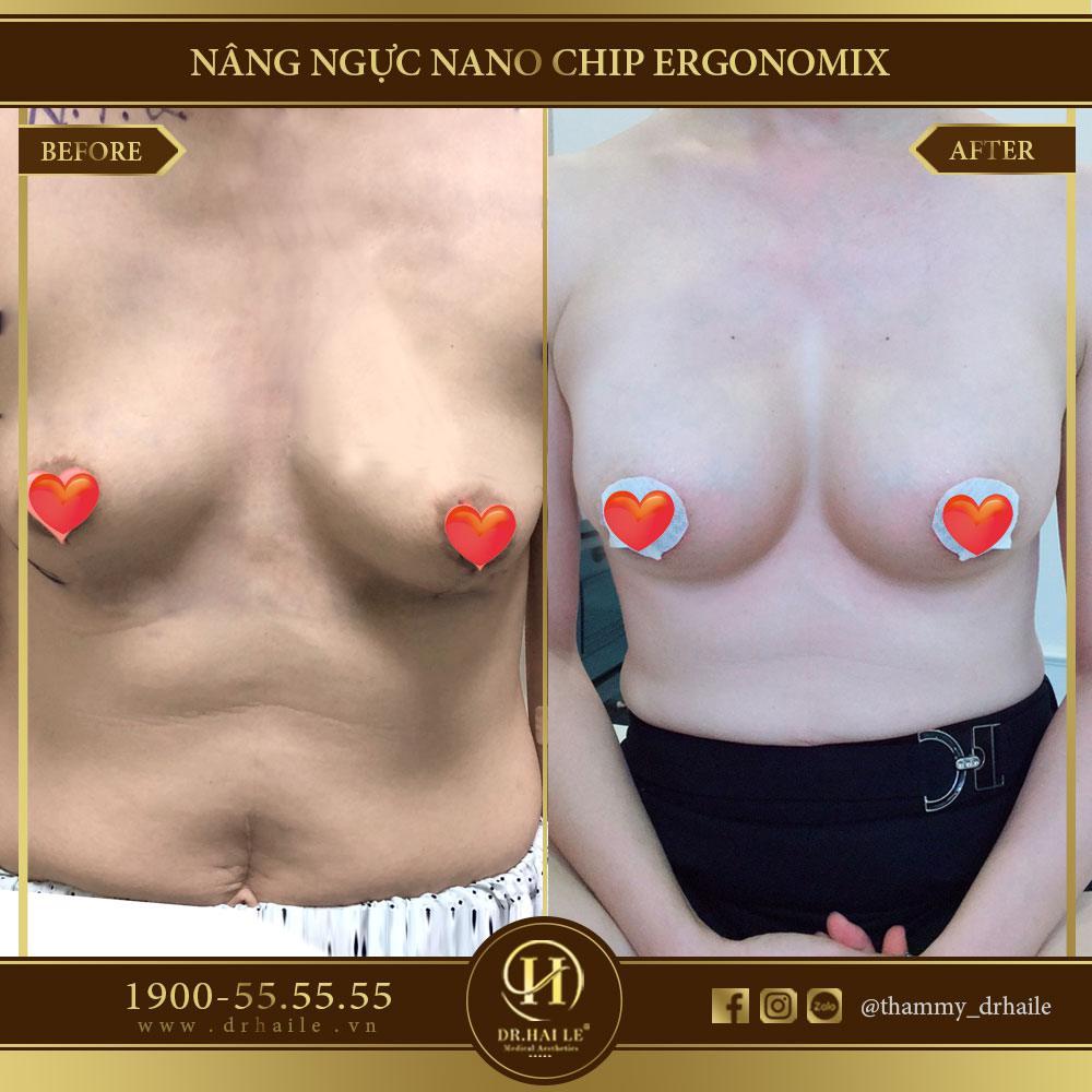 Kết quả nâng ngực Nano Chip Ergonomix