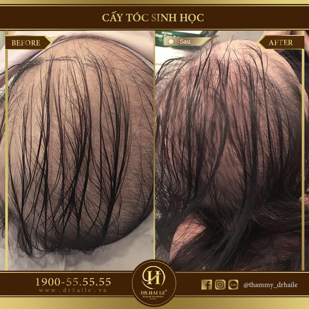 Kết quả cấy tóc sinh học Biofibre