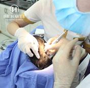 Tiến hành cấy tóc sinh học BioFibre