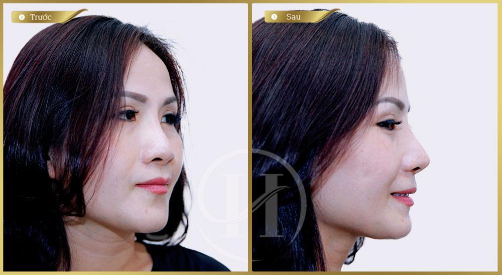 Nâng mũi S-Line Filler