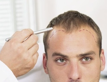 Thăm khám trước khi cấy tóc