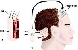 Kỹ thuật cấy tóc sinh học diễn ra trong thời gian ngắn chỉ 30 phút