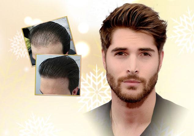 Cấy tóc sinh học Biofibre