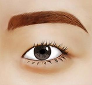 Bác sĩ đánh dấu độ cao và hình dạng mí mắt